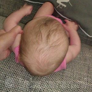Plagiocefalie bij baby van 5 maanden