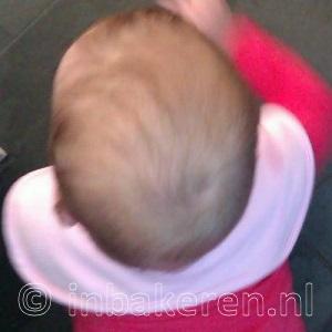 Plagiocefalie na 3 weken helmtherapie