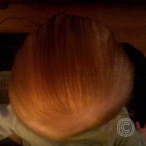 Plagiocephalie bij baby van 5 maanden
